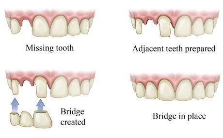 Dentist in Brooklyn | Bridges in Brooklyn | Steven Mermelstein